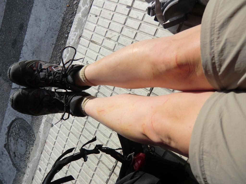 Sarahs zerkratzte Beine